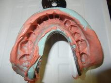 顎関節症のライブ実習コース6