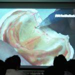 Q.総義歯における、ポストダムをつける意味、そして位置や形態、厚みについて教えてください
