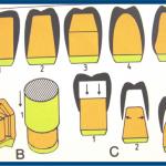 Q.パラレルテレスコープとは、どのようなテレスコープでしょうか?