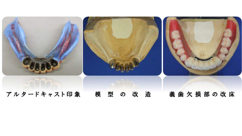 アルタードキャスト印象、模型の改造、義歯欠損部の改床