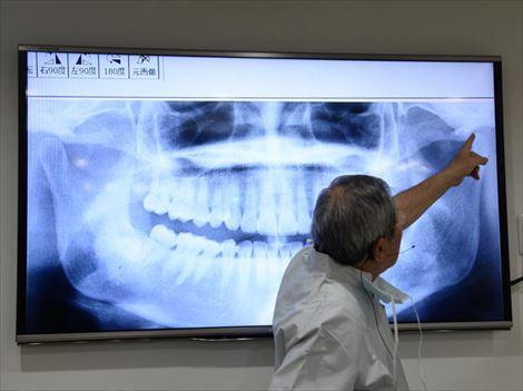 顎関節症セミナー