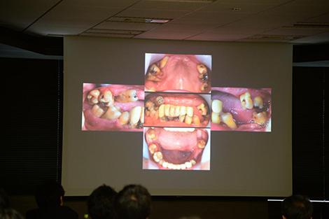 咬合治療の臨床 PM07