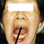 Q.総義歯で口が開かない、クローズドロックの患者様はいらっしゃるのでしょうか。