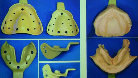 総義歯の基礎と臨床