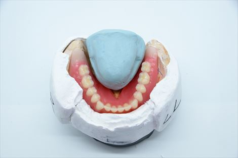 総義歯ライブ実習コース