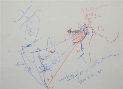 顎関節症ライブ実習コース